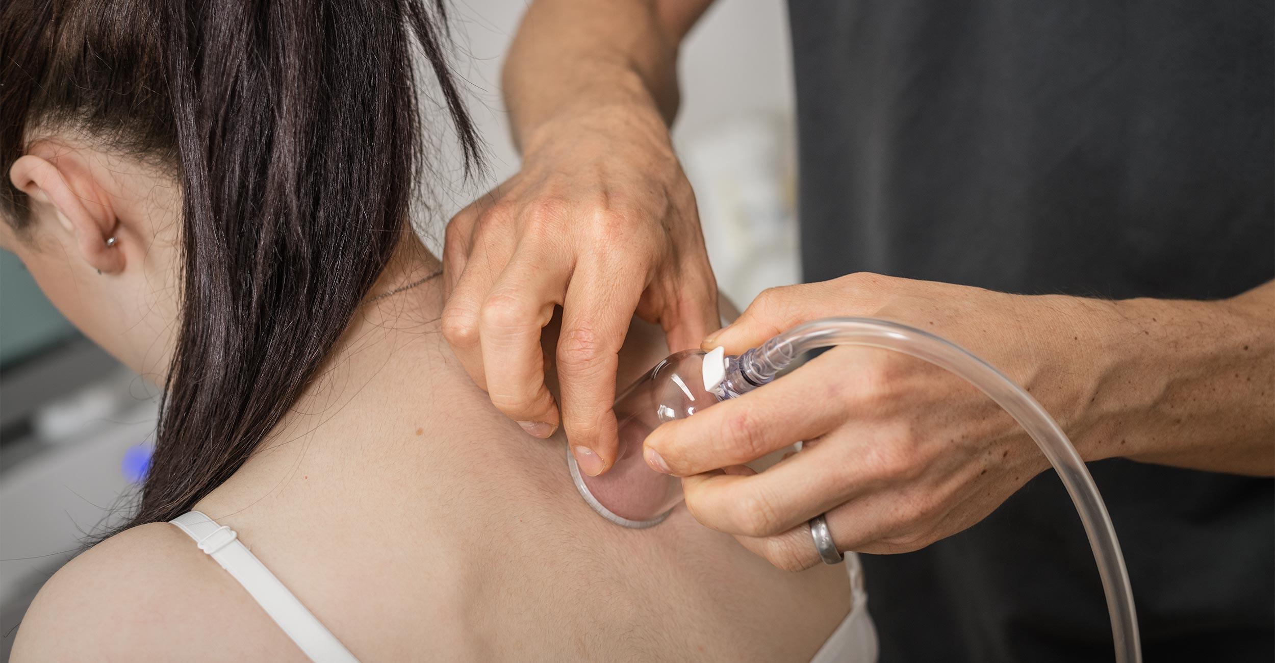 Physikalische Therapie: Schröpfen bei Verspannungen und Rückenbeschwerden